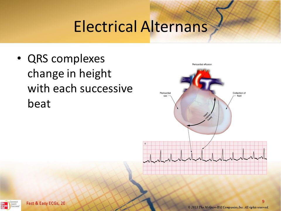Fast & Easy ECGs, 2E © 2013 The McGraw-Hill Companies, Inc. All rights reserved. Electrical Alternans QRS complexes change in height with each success
