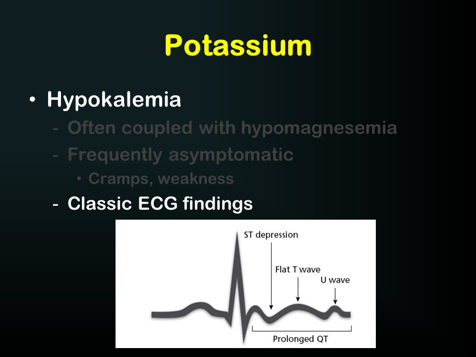 Potassium Hypokalemia -Often coupled with hypomagnesemia -Frequently asymptomatic Cramps, weakness -Classic ECG findings