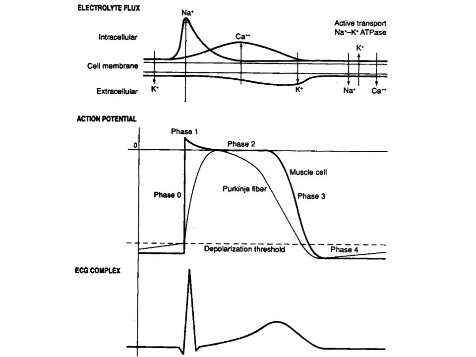 Calcium Hypercalcemia –Most often caused by parathyroid disease and malignancy – Bones, moans, groans and stones Arrhythmias with concomitant electrolyte abnormalities –Primary treatment is normal saline Furosemide can help with associated diuresis but no longer routinely recommended Bisphosphonates = definitive therapy