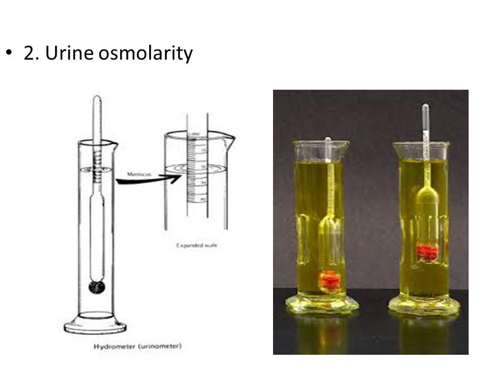2. Urine osmolarity