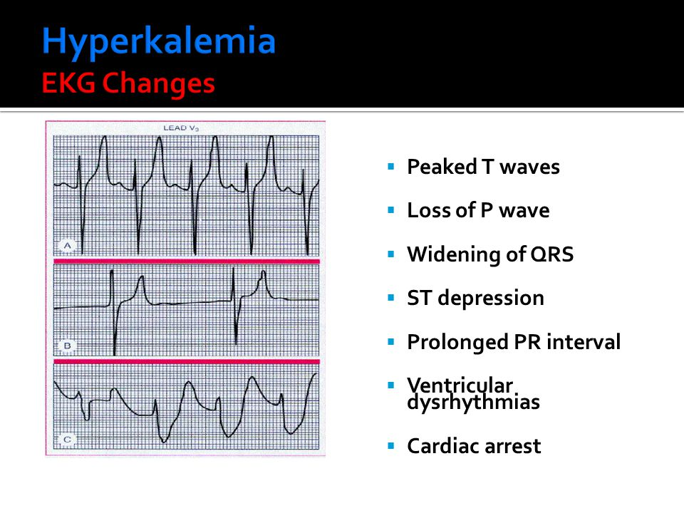  Peaked T waves  Loss of P wave  Widening of QRS  ST depression  Prolonged PR interval  Ventricular dysrhythmias  Cardiac arrest