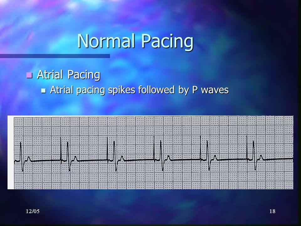 12/0518 Normal Pacing Atrial Pacing Atrial Pacing Atrial pacing spikes followed by P waves Atrial pacing spikes followed by P waves
