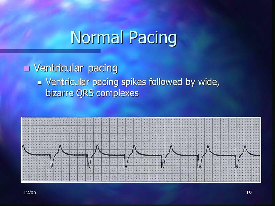 12/0519 Normal Pacing Ventricular pacing Ventricular pacing Ventricular pacing spikes followed by wide, bizarre QRS complexes Ventricular pacing spike
