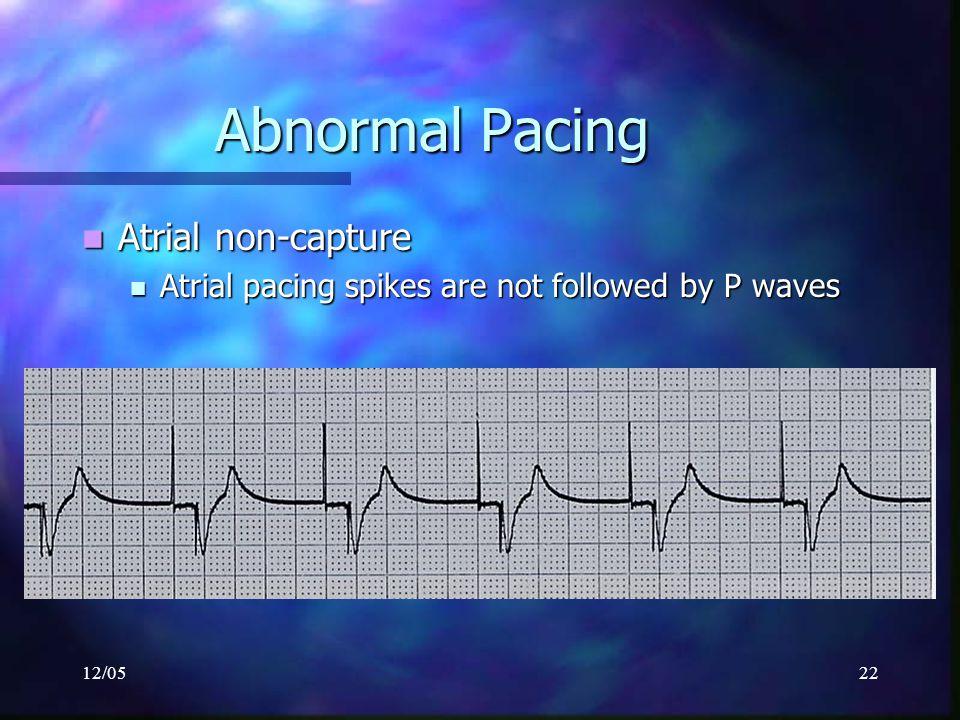 12/0522 Abnormal Pacing Atrial non-capture Atrial non-capture Atrial pacing spikes are not followed by P waves Atrial pacing spikes are not followed b