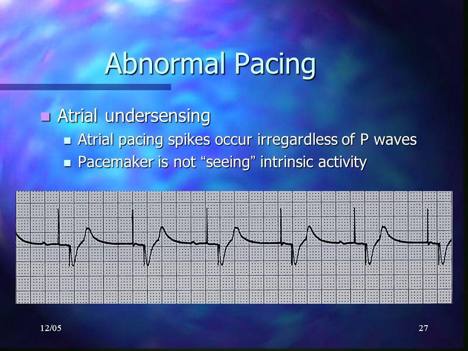 12/0527 Abnormal Pacing Atrial undersensing Atrial undersensing Atrial pacing spikes occur irregardless of P waves Atrial pacing spikes occur irregard