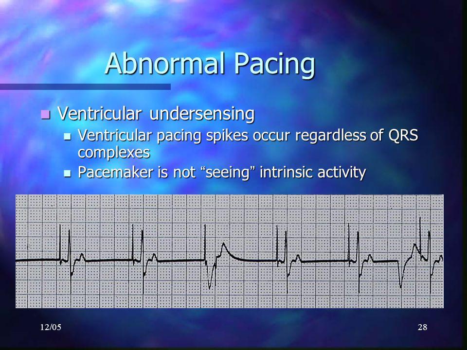 12/0528 Abnormal Pacing Ventricular undersensing Ventricular undersensing Ventricular pacing spikes occur regardless of QRS complexes Ventricular paci