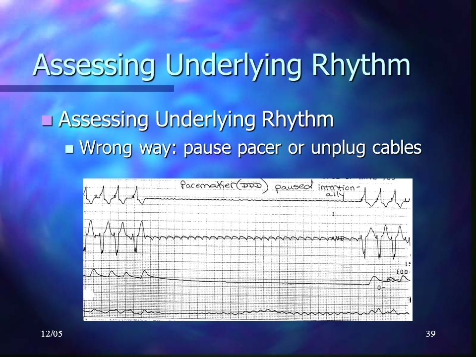 12/0539 Assessing Underlying Rhythm Assessing Underlying Rhythm Assessing Underlying Rhythm Wrong way:pause pacer or unplug cables Wrong way:pause pac