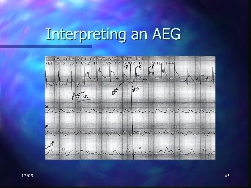 12/0545 Interpreting an AEG