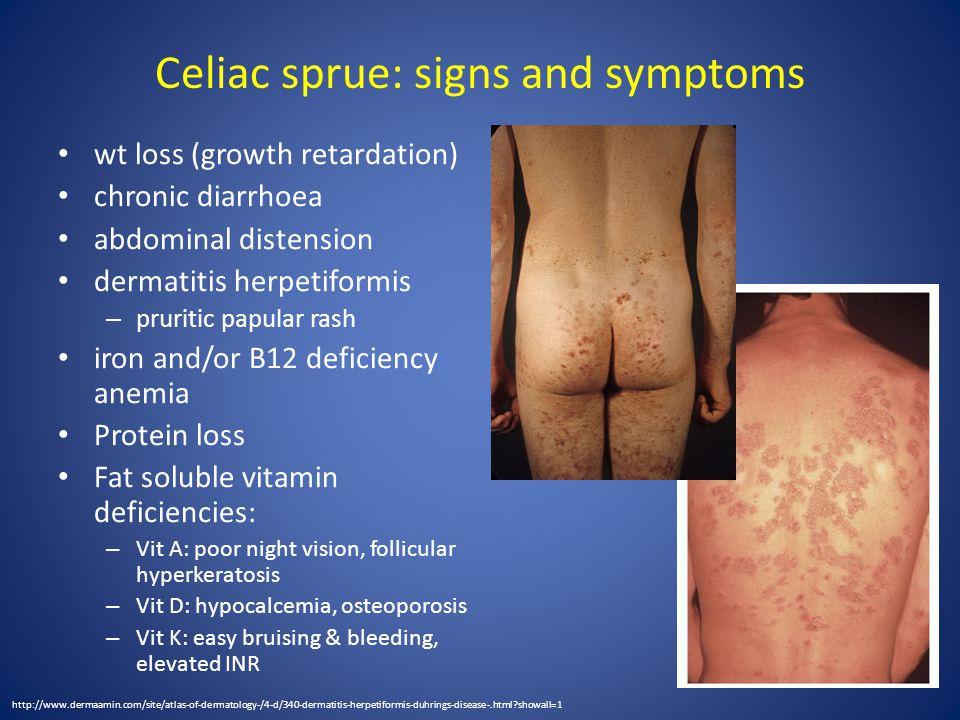 Celiac sprue: signs and symptoms wt loss (growth retardation) chronic diarrhoea abdominal distension dermatitis herpetiformis – pruritic papular rash