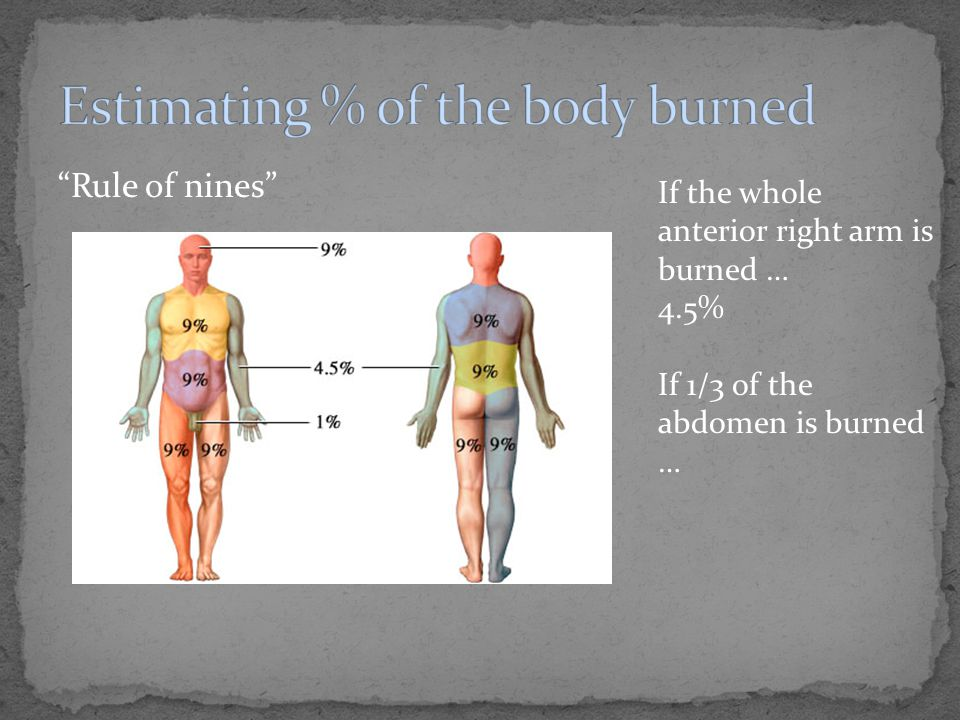 """""""Rule of nines"""" If the whole anterior right arm is burned … 4.5% If 1/3 of the abdomen is burned …"""