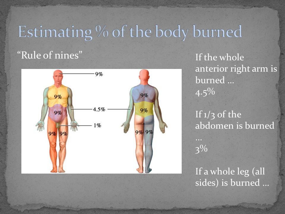 """""""Rule of nines"""" If the whole anterior right arm is burned … 4.5% If 1/3 of the abdomen is burned … 3% If a whole leg (all sides) is burned …"""