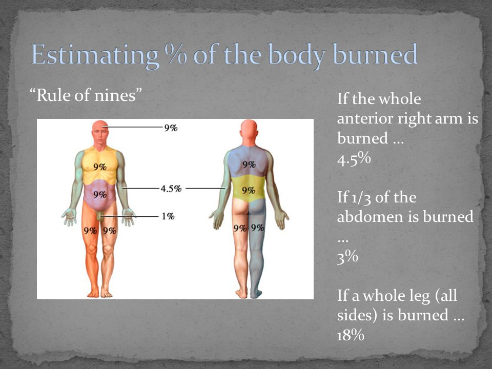 Rule of nines If the whole anterior right arm is burned … 4.5% If 1/3 of the abdomen is burned … 3% If a whole leg (all sides) is burned … 18%