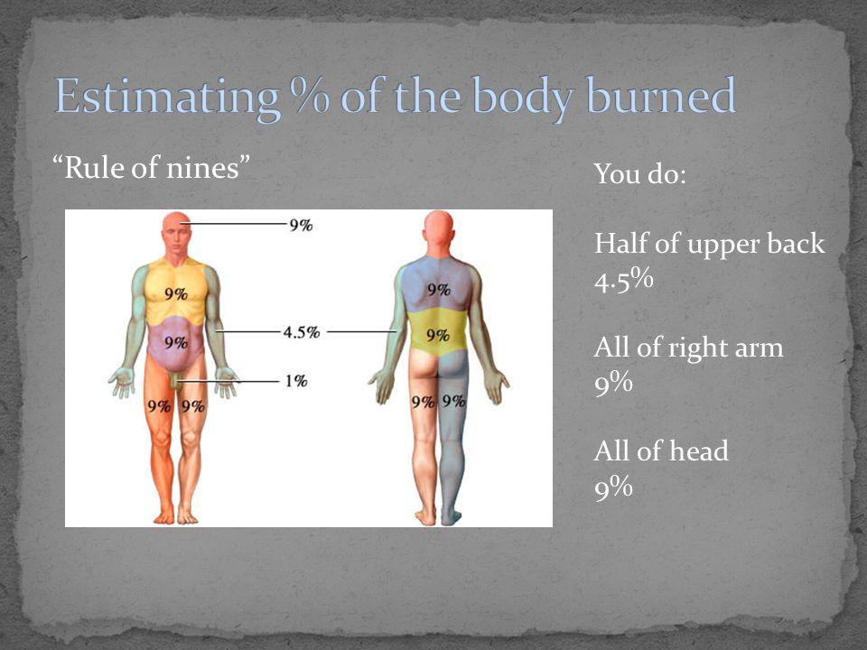 """""""Rule of nines"""" You do: Half of upper back 4.5% All of right arm 9% All of head 9%"""