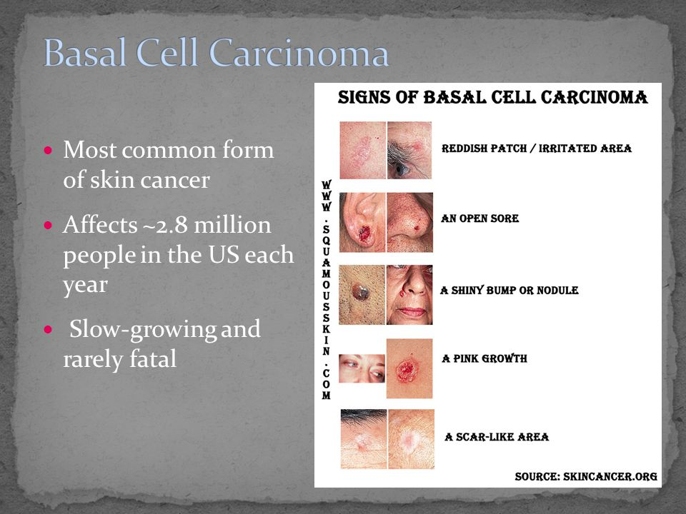 Most common form of skin cancer Affects ~2.8 million people in the US each year Slow-growing and rarely fatal
