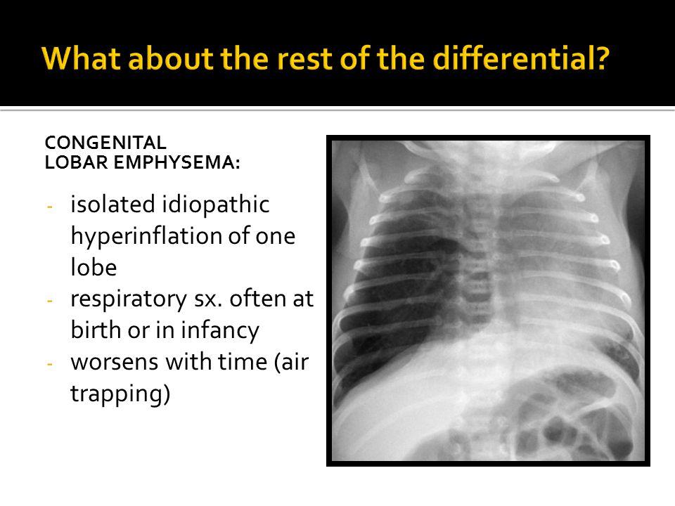 CONGENITAL LOBAR EMPHYSEMA: - isolated idiopathic hyperinflation of one lobe - respiratory sx.