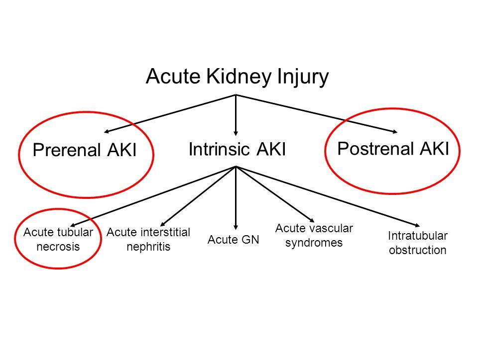 Acute Kidney Injury Postrenal AKI Intrinsic AKI Prerenal AKI Acute interstitial nephritis Acute tubular necrosis Acute GN Acute vascular syndromes Int