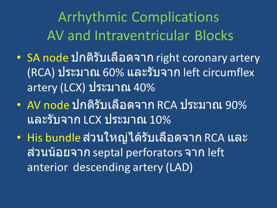 Arrhythmic Complications AV and Intraventricular Blocks SA node ปกติรับเลือดจาก right coronary artery (RCA) ประมาณ 60% และรับจาก left circumflex arter