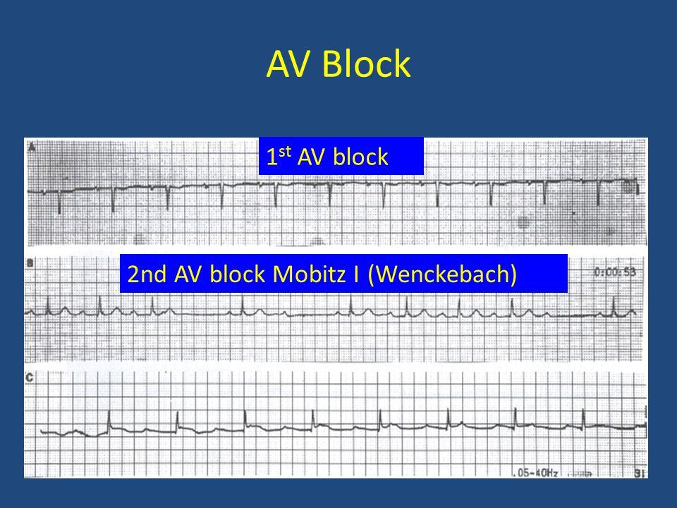 AV Block 1 st AV block 2nd AV block Mobitz I (Wenckebach)