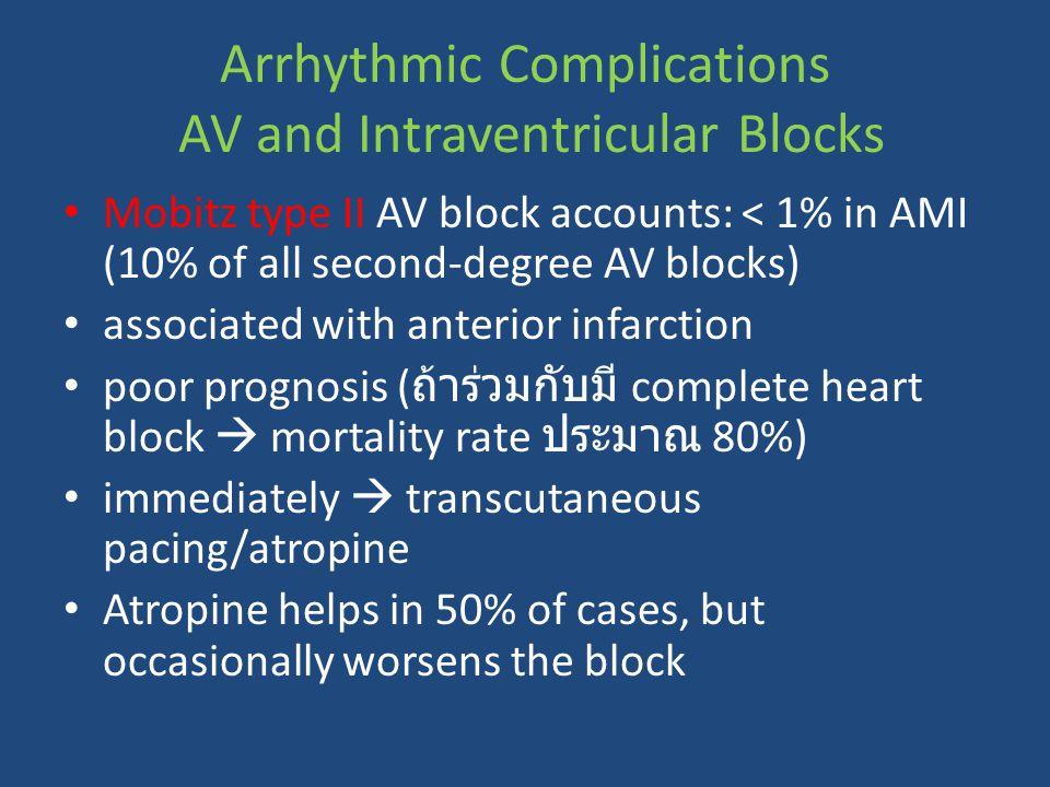 Arrhythmic Complications AV and Intraventricular Blocks Mobitz type II AV block accounts: < 1% in AMI (10% of all second-degree AV blocks) associated