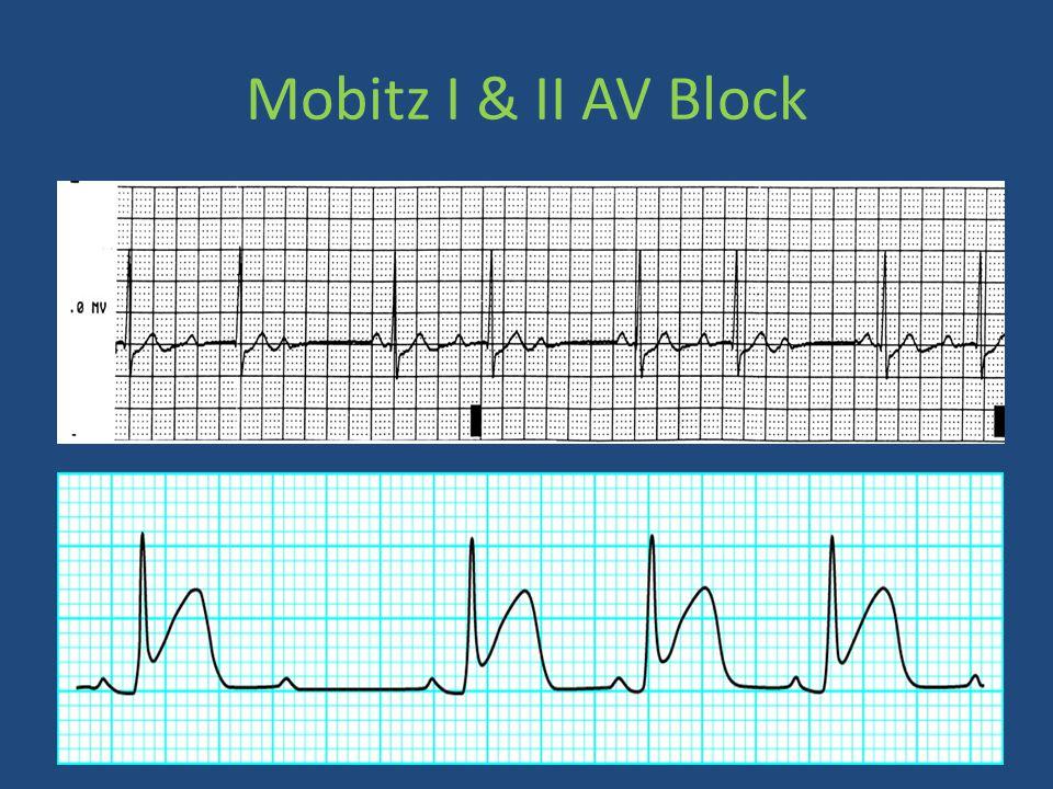 Mobitz I & II AV Block