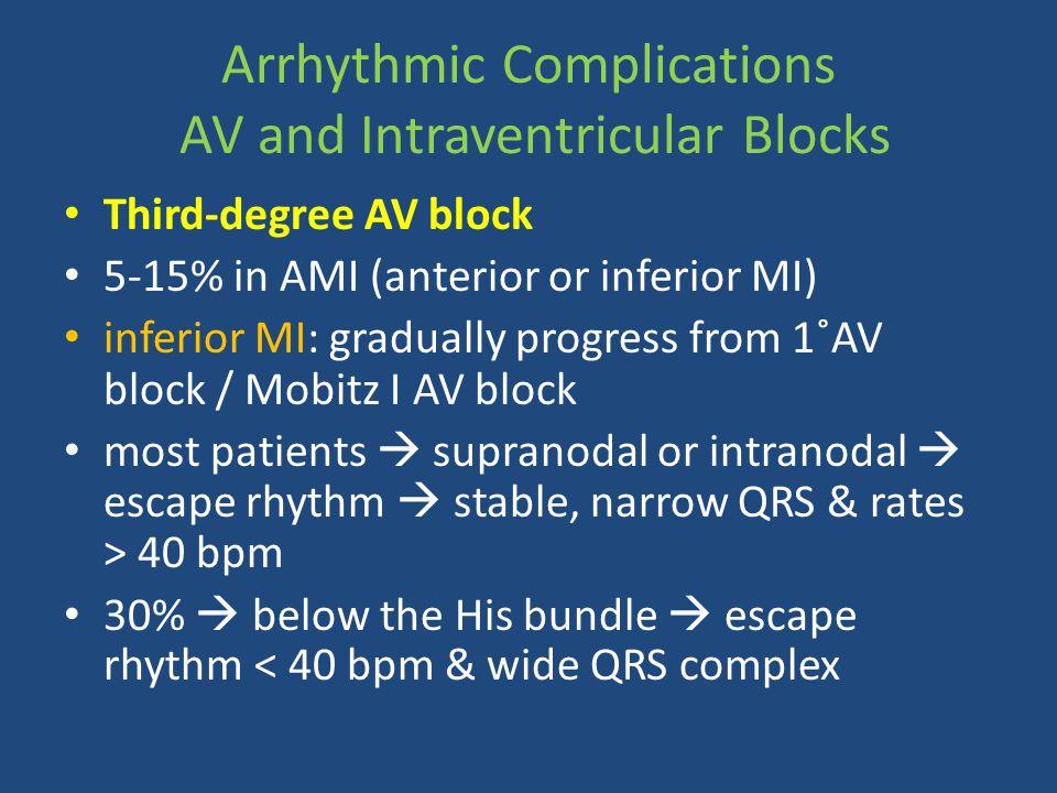Arrhythmic Complications AV and Intraventricular Blocks Third-degree AV block 5-15% in AMI (anterior or inferior MI) inferior MI: gradually progress f