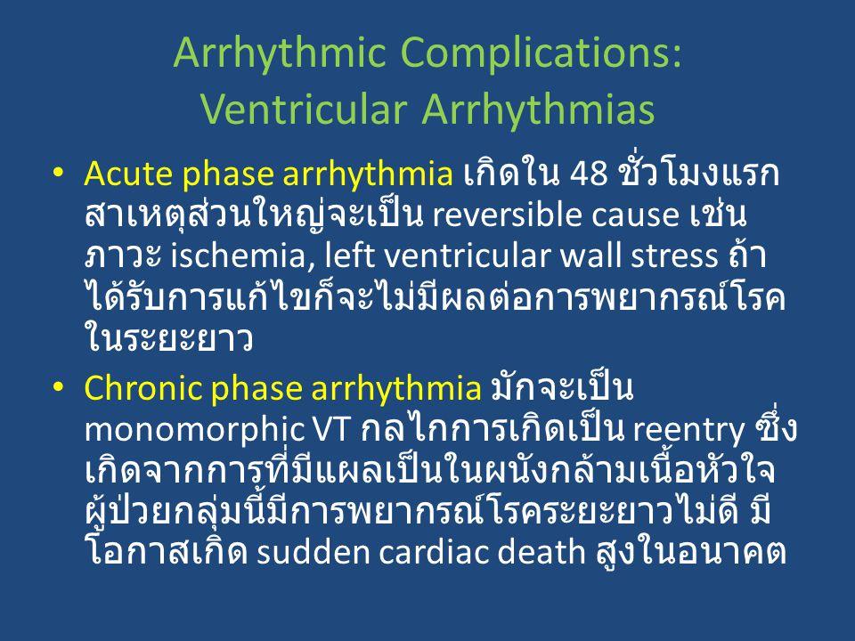 Acute phase arrhythmia เกิดใน 48 ชั่วโมงแรก สาเหตุส่วนใหญ่จะเป็น reversible cause เช่น ภาวะ ischemia, left ventricular wall stress ถ้า ได้รับการแก้ไขก