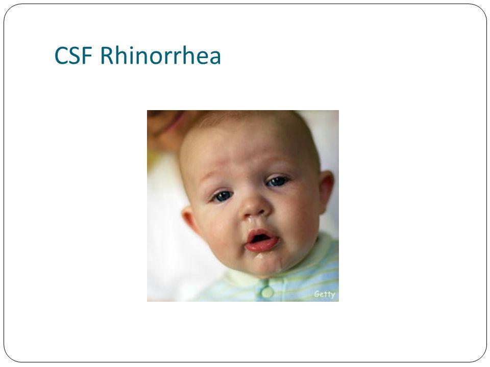 CSF Rhinorrhea