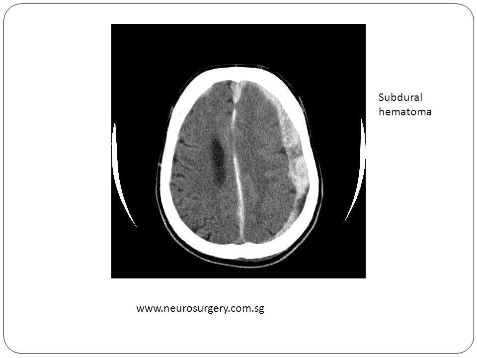 www.neurosurgery.com.sg Subdural hematoma