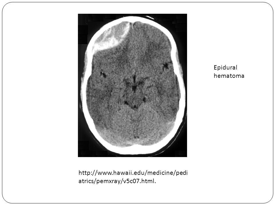 http://www.hawaii.edu/medicine/pedi atrics/pemxray/v5c07.html. Epidural hematoma