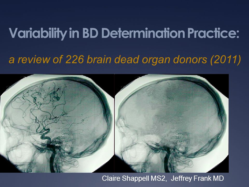Variability in BD Determination Practice: Claire Shappell MS2, Jeffrey Frank MD a review of 226 brain dead organ donors (2011)