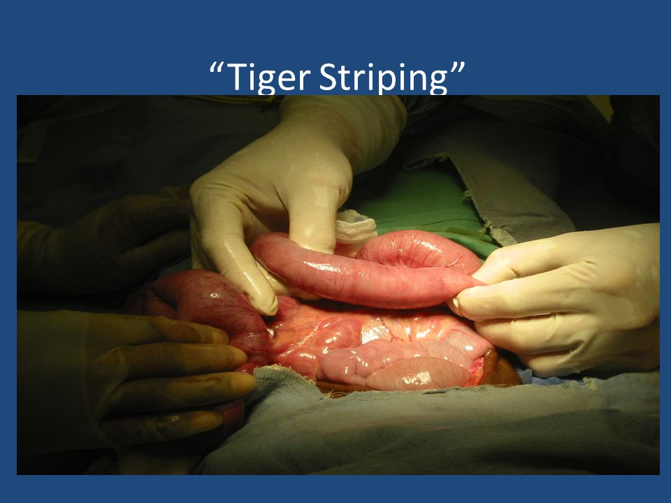 Tiger Striping