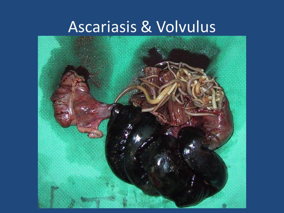 Ascariasis & Volvulus