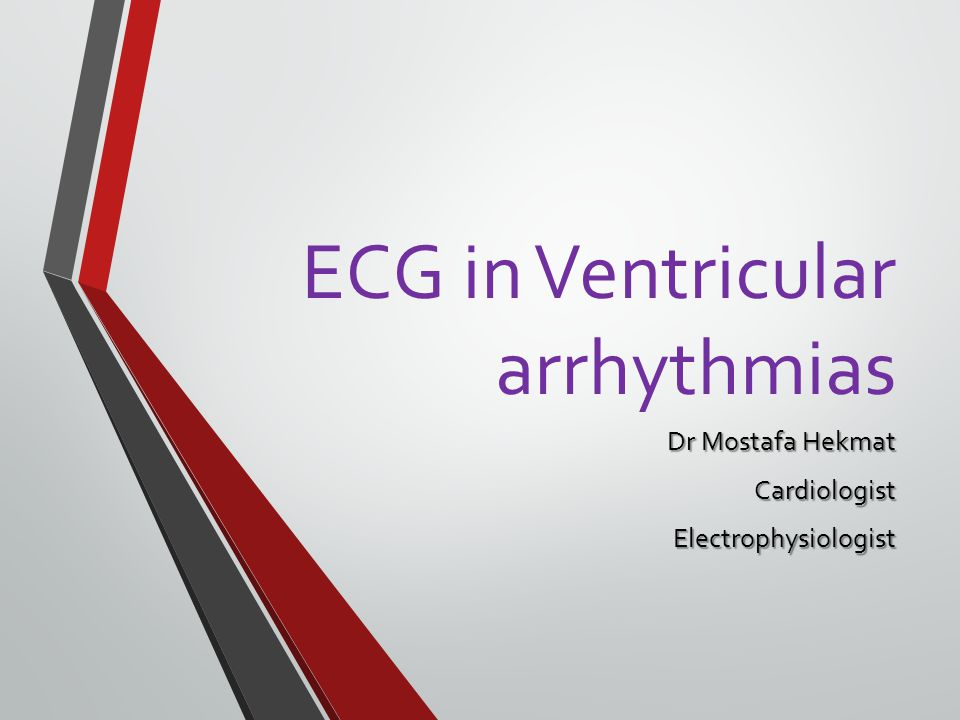A look at ventricular arrhythmias Ventricular arrhythmias originate in the ventricles below the bundle of His.