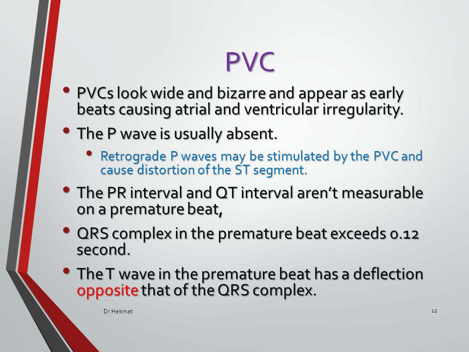 PVC PVCs look wide and bizarre and appear as early beats causing atrial and ventricular irregularity. PVCs look wide and bizarre and appear as early b