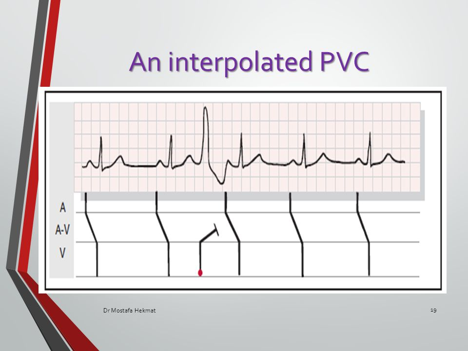 An interpolated PVC Dr Mostafa Hekmat 19