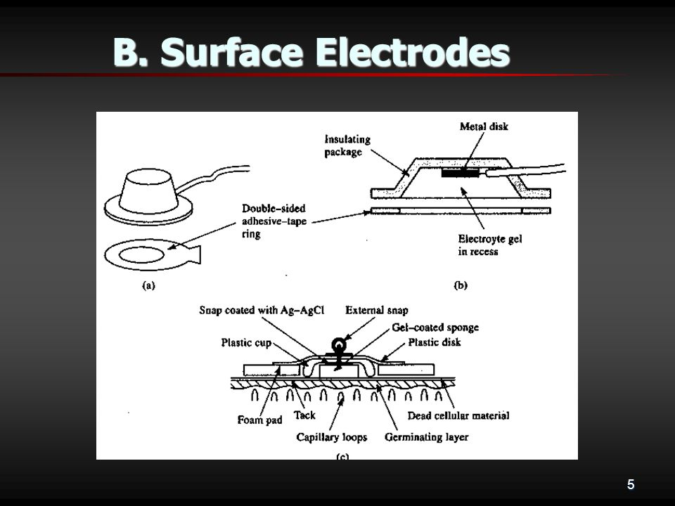 5 B. Surface Electrodes