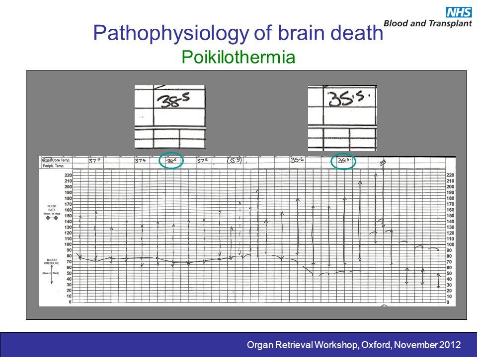 Organ Retrieval Workshop, Oxford, November 2012 Pathophysiology of brain death Poikilothermia