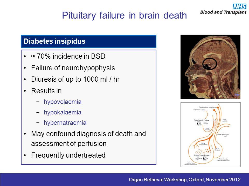 Organ Retrieval Workshop, Oxford, November 2012 Pituitary failure in brain death Diabetes insipidus ≈ 70% incidence in BSD Failure of neurohypophysis