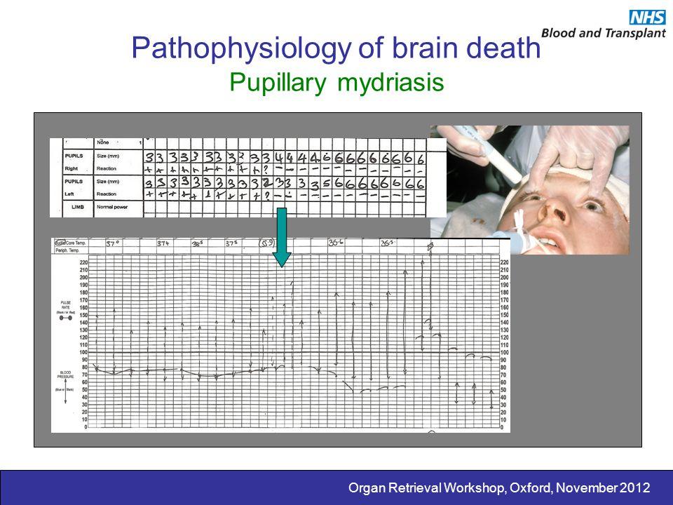 Organ Retrieval Workshop, Oxford, November 2012 Pathophysiology of brain death Pupillary mydriasis