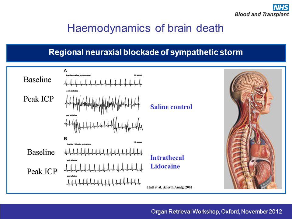 Organ Retrieval Workshop, Oxford, November 2012 Haemodynamics of brain death Regional neuraxial blockade of sympathetic storm