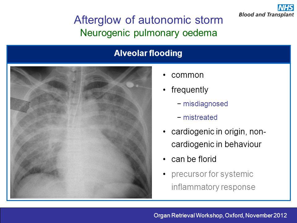 Organ Retrieval Workshop, Oxford, November 2012 Afterglow of autonomic storm Neurogenic pulmonary oedema Alveolar flooding common frequently −misdiagn