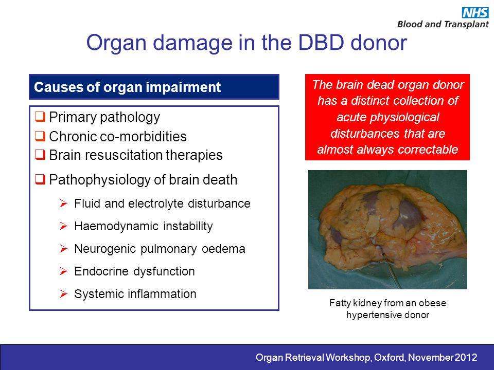 Organ Retrieval Workshop, Oxford, November 2012 Organ damage in the DBD donor Causes of organ impairment  Primary pathology  Chronic co-morbidities