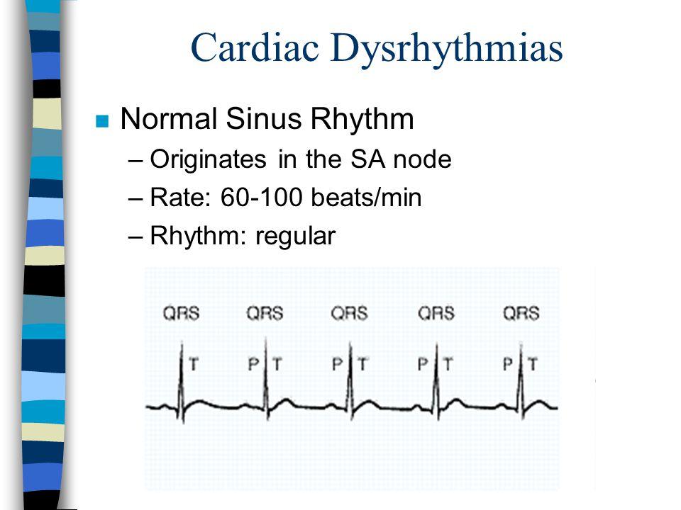 Cardiac Dysrhythmias n Normal Sinus Rhythm –Originates in the SA node –Rate: 60-100 beats/min –Rhythm: regular
