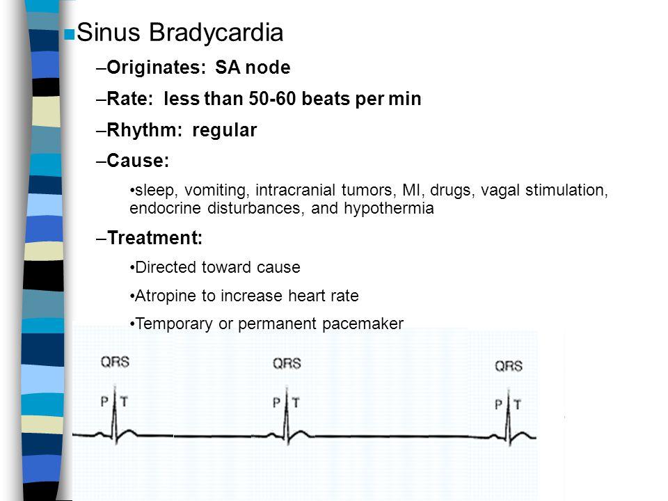 n Sinus Bradycardia –Originates: SA node –Rate: less than 50-60 beats per min –Rhythm: regular –Cause: sleep, vomiting, intracranial tumors, MI, drugs
