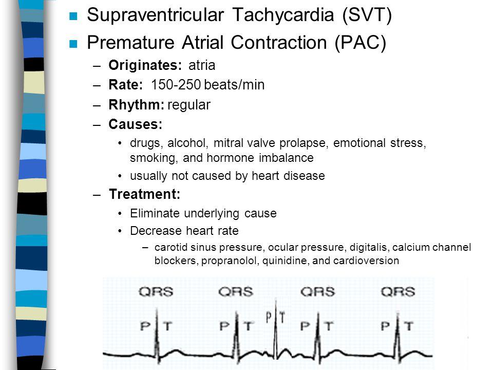 n Supraventricular Tachycardia (SVT) n Premature Atrial Contraction (PAC) –Originates: atria –Rate: 150-250 beats/min –Rhythm: regular –Causes: drugs,