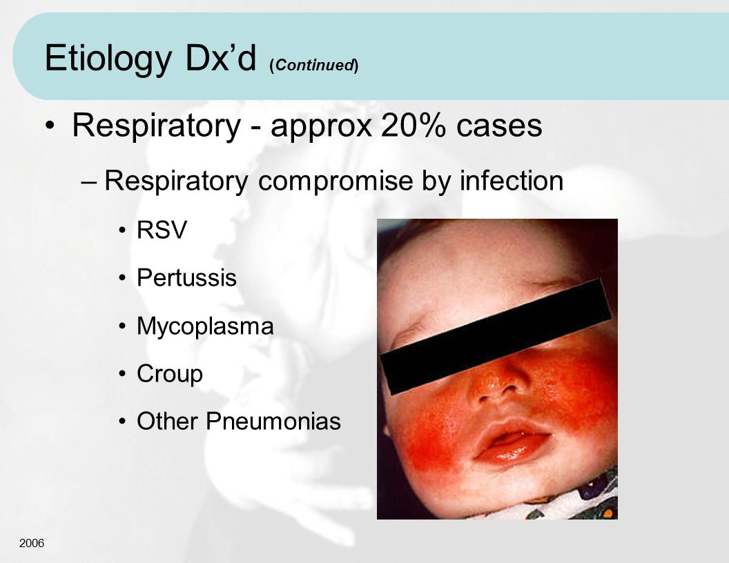 2006 Etiology Dx'd (Continued) Respiratory - approx 20% cases –Respiratory compromise by infection RSV Pertussis Mycoplasma Croup Other Pneumonias