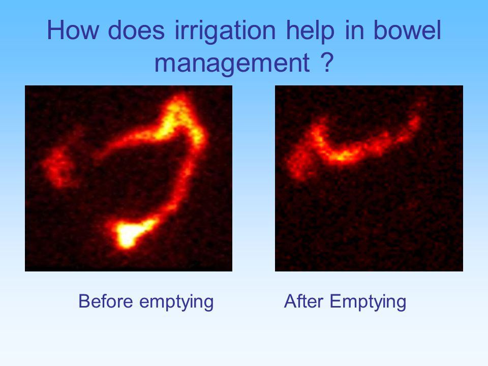 How does irrigation help in bowel management Before emptying After Emptying