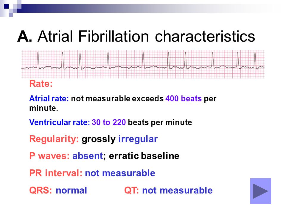 A. Atrial Fibrillation characteristics Rate: Atrial rate: not measurable exceeds 400 beats per minute. Ventricular rate: 30 to 220 beats per minute Re