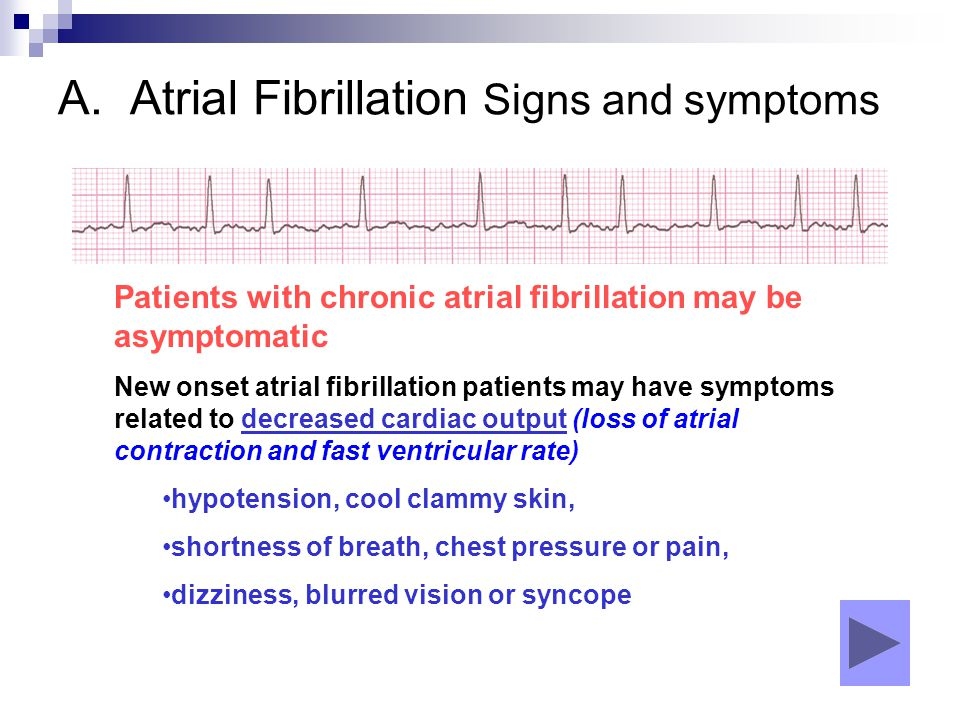 A. Atrial Fibrillation Signs and symptoms Patients with chronic atrial fibrillation may be asymptomatic New onset atrial fibrillation patients may hav