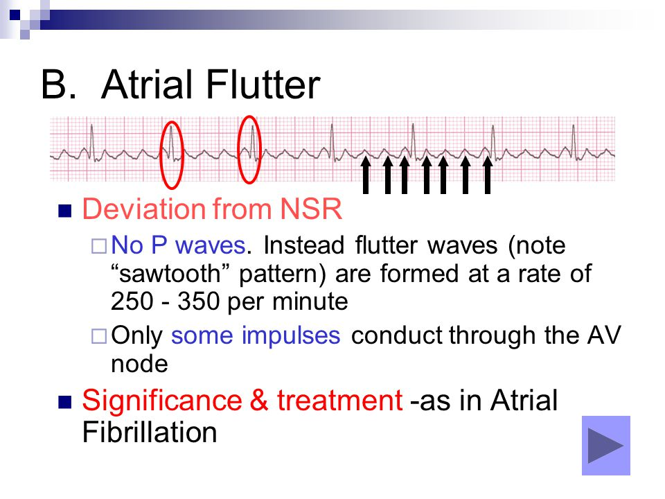 "B. Atrial Flutter Deviation from NSR  No P waves. Instead flutter waves (note ""sawtooth"" pattern) are formed at a rate of 250 - 350 per minute  Only"